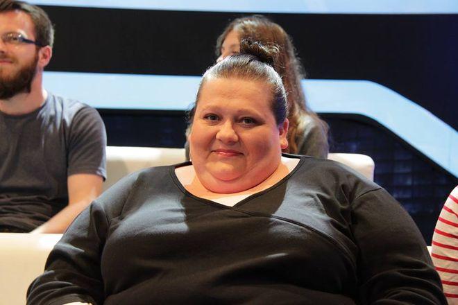 Anna Kapela przed operacją zmniejszenia żołądka